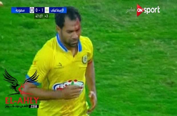شاهد إصابة دامية لحسني عبدربه في مواجهة سموحة